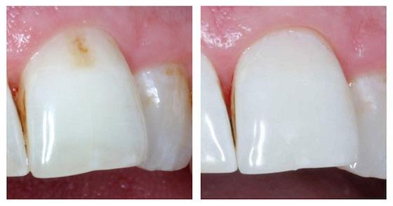 до и после лечения с помощью жидкой пломбы Icon