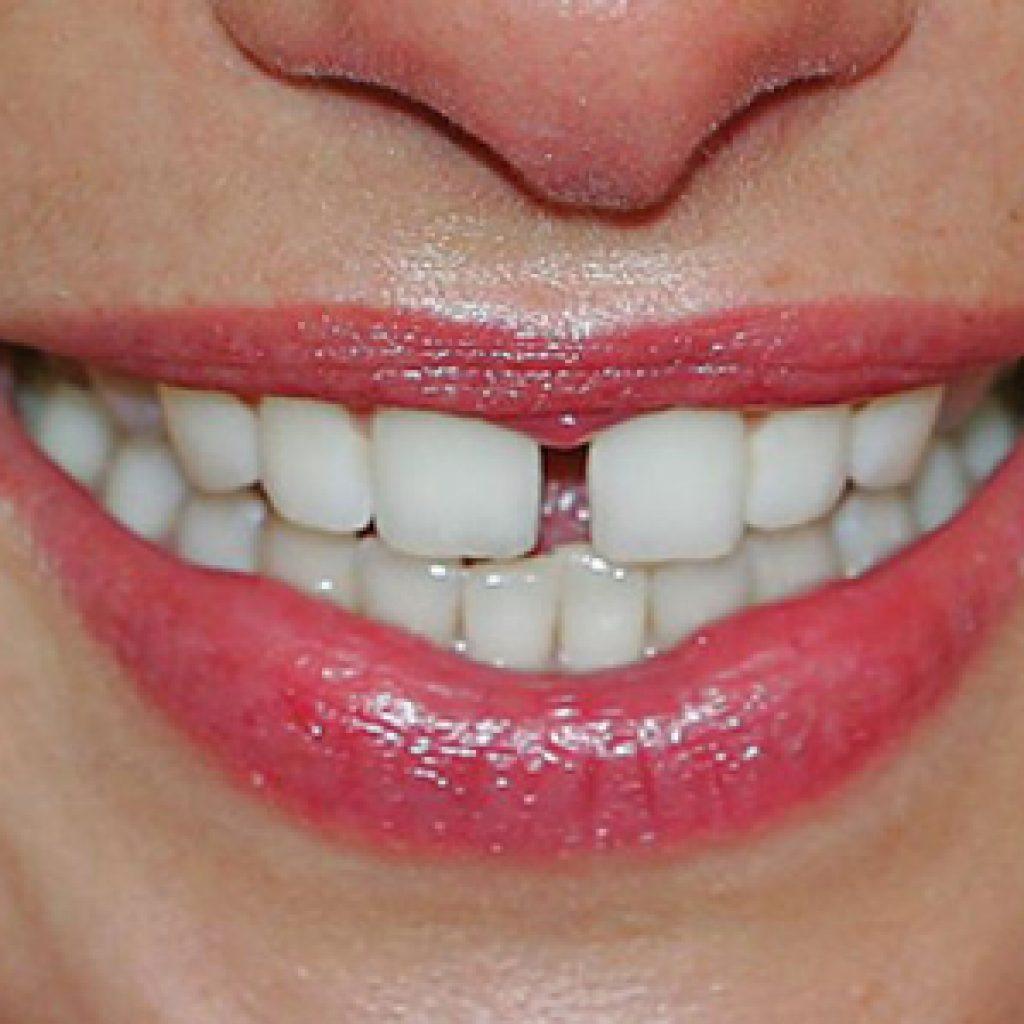 Как из щели между зубами сделать 86