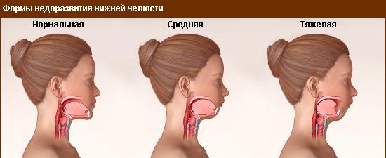 formy-nedorazvitiya-nizhnej-chelyusti
