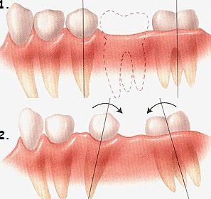smeshenie-zubov1